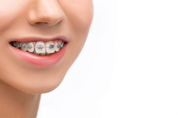 beautiful-young-woman-with-teeth-braces-1-scaled.jpg